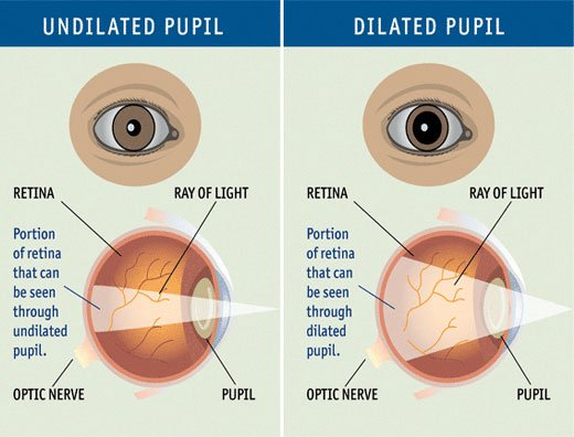 Although glaucoma is not preventable, it can be detected and treated to prevent loss of vision.