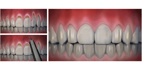 Affecting nearly half of the U.S. population, gum recession is an oral health issue in which the gums have worn ...