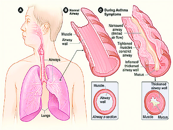 Asthma is like blowing up a balloon and constricting the opening that allows the air to escape.