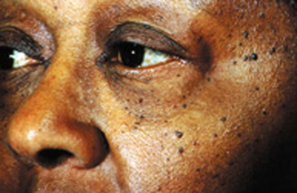Skin moles may indicate a woman's risk for breast cancer, according to two studies coming out this week in the ...