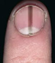Acral lentiginous melanoma, which occurs more frequently in blacks, is often characterized by a spot on the sole of the foot or streak on a nail.