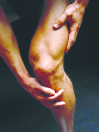 Joint inflammation may also be caused by infection, which can lead to septic arthritis. (Courtesy photo)