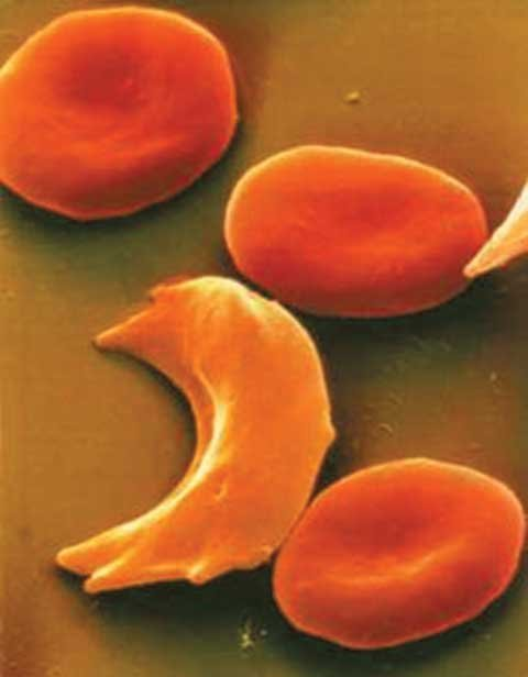 Sickle cell disease is a group of disorders that affects hemoglobin, the molecule that delivers oxygen to blood cells throughout ...