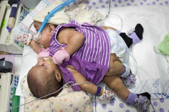 According to Reuters, conjoined 6-month-old twin girls will begin to undergo tissue expansion this month to stretch skin that will ...