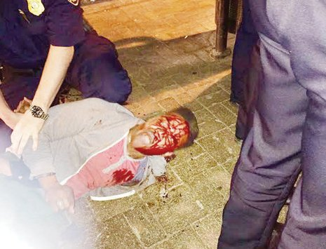 Bloodied University of Virginia student Martese Johnson is held down by an ABC agent after being slammed to the ground last week outside a Charlottesville pub.