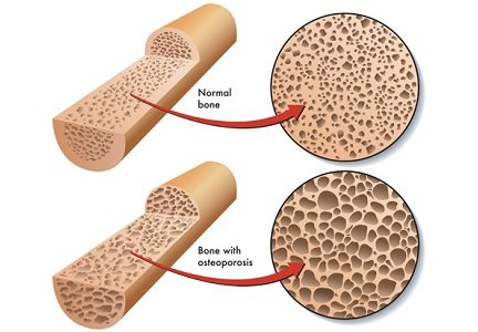 Osteoporosis is the thinning of bone tissue and loss of bone density over time. There are no symptoms in the ...