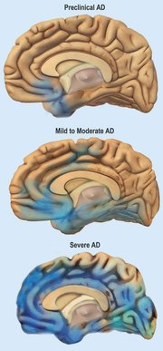 Alzheimer's is a progressive disease that results in nerve cell death and tissue loss throughout the brain. Plaques and tangles, which are the precursors to AD, are depicted in the blue-shaded areas. As the disease progresses, the brain shrinks, which eventually impacts most of its functions.