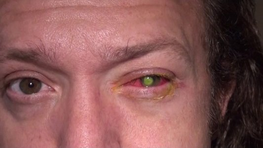 Chad Groeschen was working on an outdoor deck for a client a few weeks ago when his left eye started ...