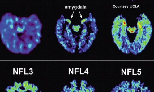 For the first time, the National Football League has publicly acknowledged a connection between football and chronic traumatic encephalopathy, the ...