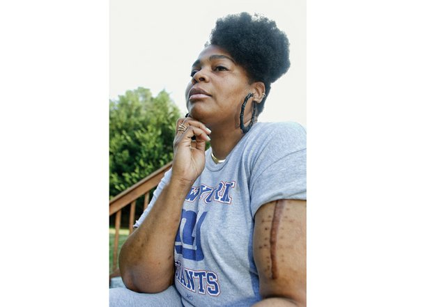 S.F. Braxton bears the scar of the vicious knife attack that changed her life. She has not been able to return to work since she was stabbed April 14, 2015.