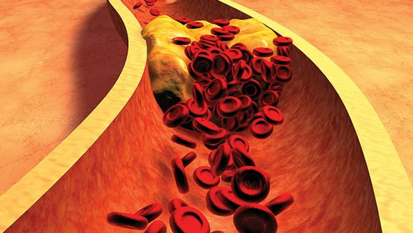 Although cholesterol has a bad reputation, it is actually essential to the body and a part of every cell. If ...