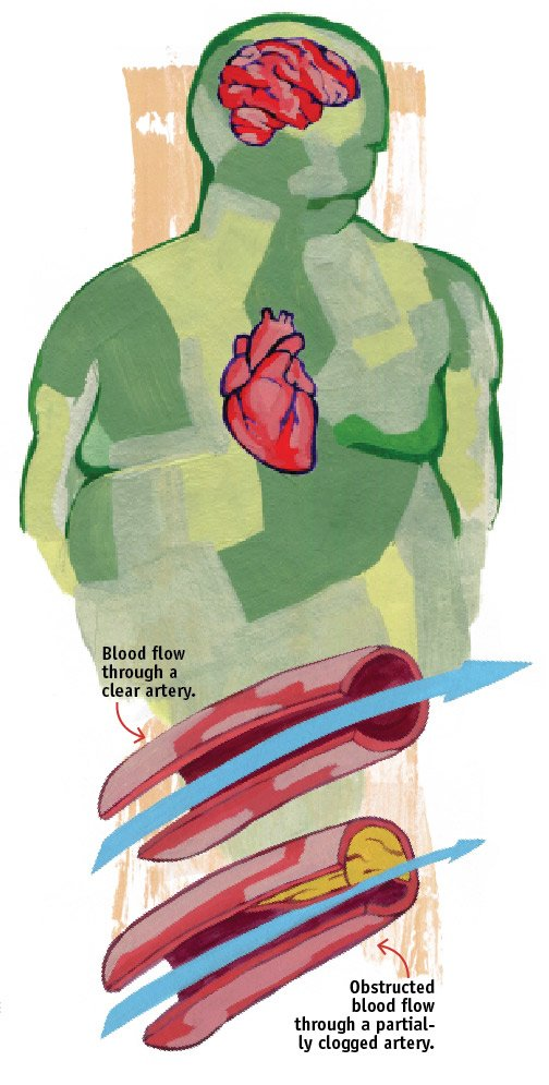 Heart attack and stroke are two of the most common complications from high cholesterol. In both conditions, cholesterol in the ...