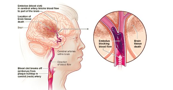 A stroke is serious, just like a heart attack. Yet, many don't know as much about it.