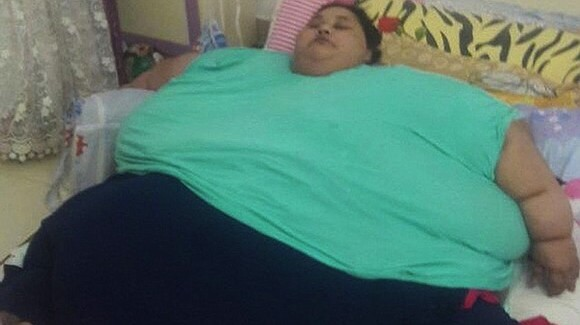 Eman Ahmed, from Egypt, is believed to be the world's heaviest woman. According to her family, she weighs 1,102 pounds ...