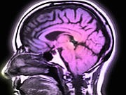 When the brain ages faster than normal, people are at heightened risk for brain disease and impairment, as well as ...