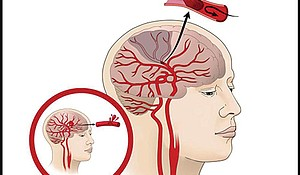 A stroke occurs when a blood vessel in the brain ruptures, as shown in the smaller image. In ischemic stroke (on the right) a blood clot blocks the flow of blood in arteries feeding the brain.
