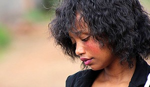 Facial rashes are one of the most common symptoms of lupus.