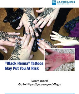 """Black henna,"" is marketed for application on the skin's surface as a form of temporary tattoo, and it is potentially harmful."