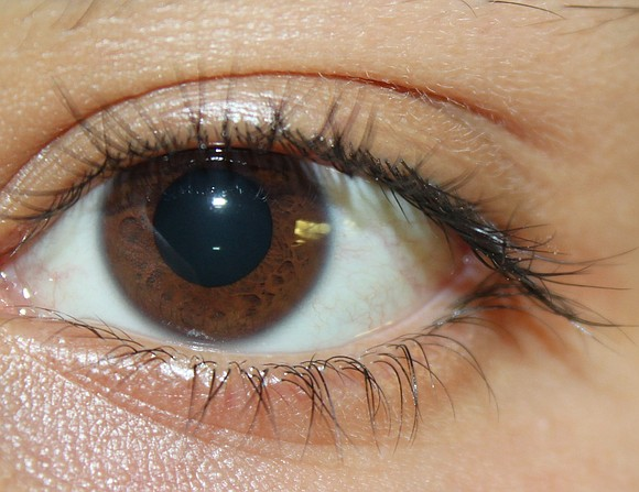 Glaucoma is an eye disease that can cause vision loss and even blindness, but it can come on so gradually ...