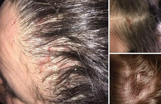 Women Claim Monat Hair Products Cause Balding, Scalp Sores