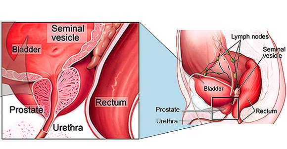 Dealing with the prostate is often the first significant experience many Black men have with the medical system. Typically, our ...