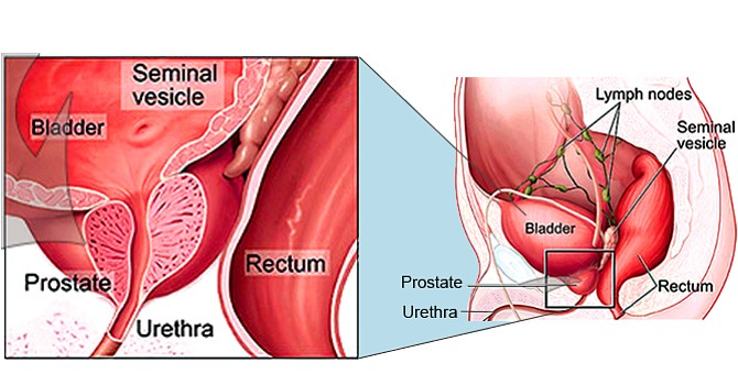 does prostate radiation cause impotence