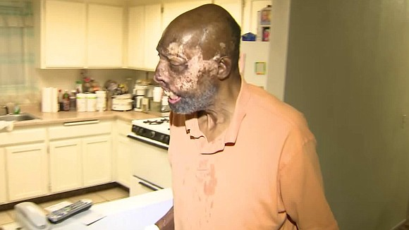 A Los Angeles man who suffered extensive burns in a crash told KTLA on Friday that he was raising money ...