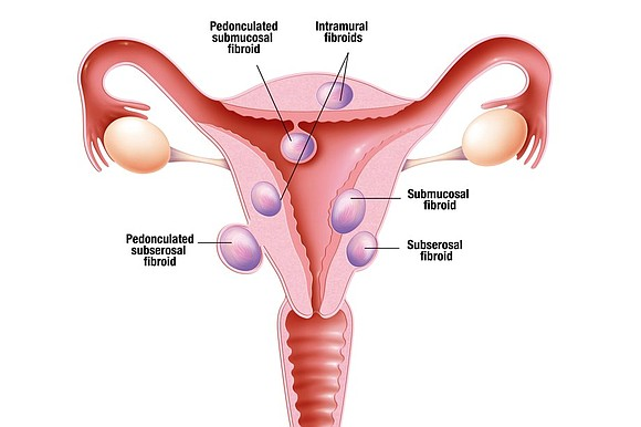 More hysterectomies are performed each year because of the growth of fibroids. The uterus has been defined as an organ ...