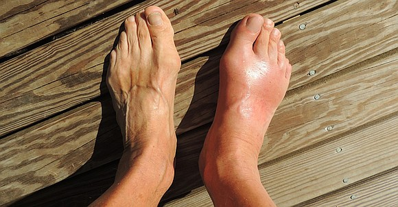 The holiday season comes with little indulgences. But when you have gout, you must be smart to make sure those ...