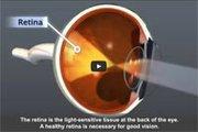 Source: National Eye Institute