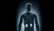 Source: National Kidney Foundation