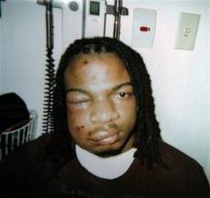 PITTSBURGH (AP) -- A young man was wrongfully beaten and arrested by three white police...