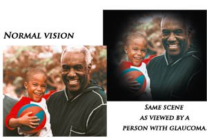 Early detection means vision protection...
