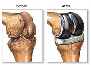 Knee Replacement Not An Quot Easy Solution Quot For Obese Patients