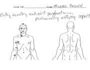 A copy of Michael Brown's autopsy diagram.