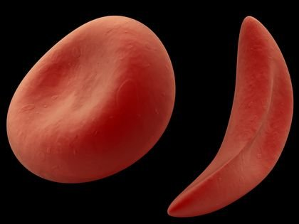 Sickle Cell Disease (SCD) is the most common genetic condition detected by newborn screening in the United States – a ...