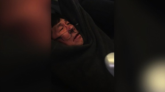 The passenger forcefully removed from a United Airlines flight this week has a concussion and broken nose, his attorney told ...