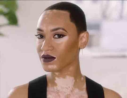 Cover Girl Offers Ad Featuring Black Model With Vitiligo Our Weekly Black News And Entertainment Los Angeles
