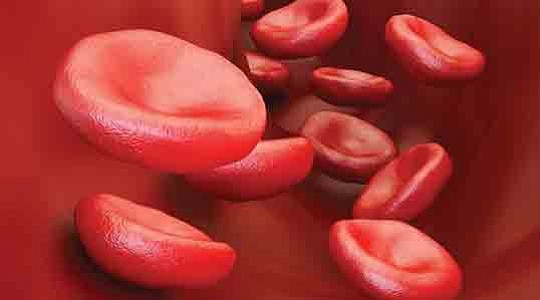 Sickle Cell Disease (SCD) is an inherited blood disorder that can cause pain, anemia, infection, and..