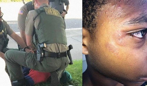 The mother of a young African American male filed a lawsuit, saying three sheriff's deputies pinned him to the ground ...
